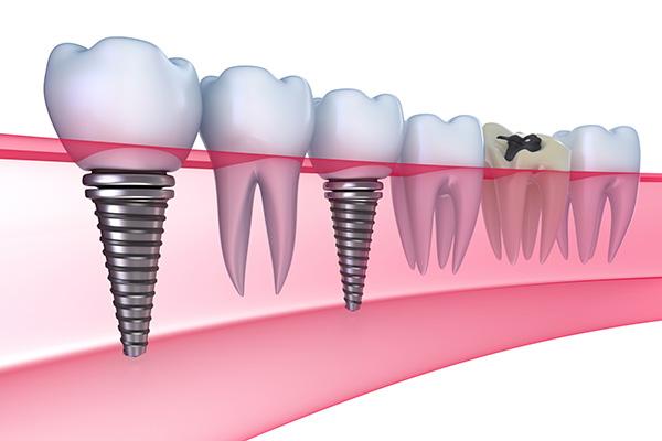 Dental Implants Dentist New York